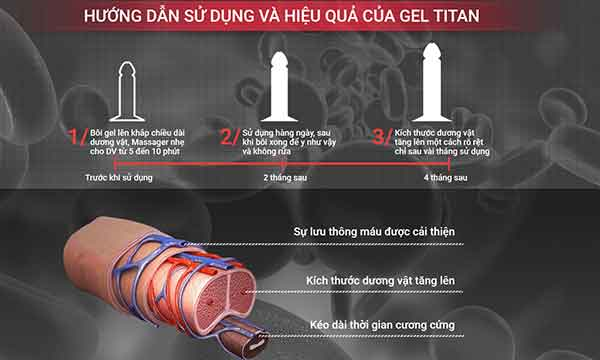 hướng dẫn sử dụng titan gel